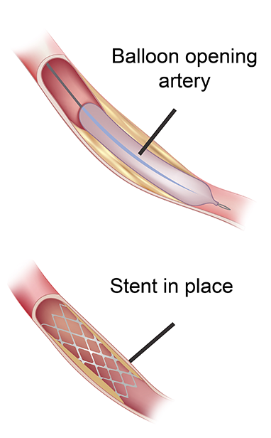 Endovascular stent graft