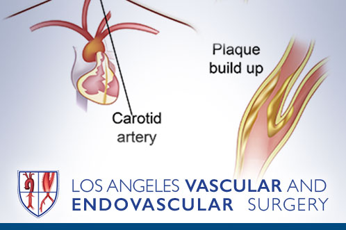 Carotid Artery Disease, Stroke, Transient Ischemic Attacks