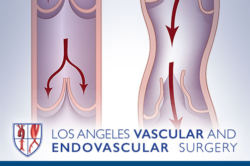 Chronic Vein Disease (Varicose Veins)